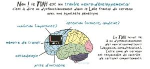 schéma cerveau  TDAH trouble neuro développemental